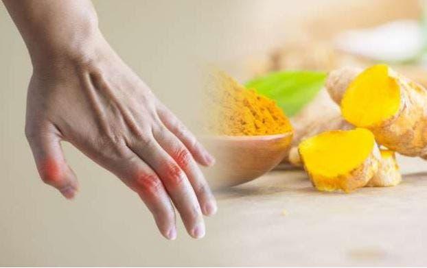 Cúrcuma para la artritis